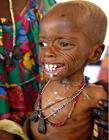 非洲饥荒图片