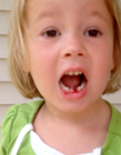 射箭拔牙 小孩自己拔牙的方法