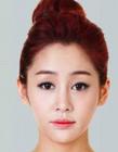 韩国整形对比图 整形美容前后对比