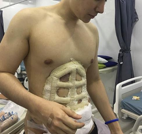 腹肌整形手术的图片